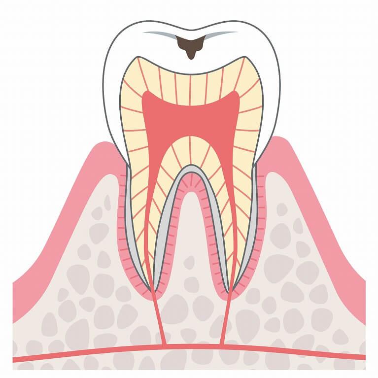 C1:エナメル質の虫歯