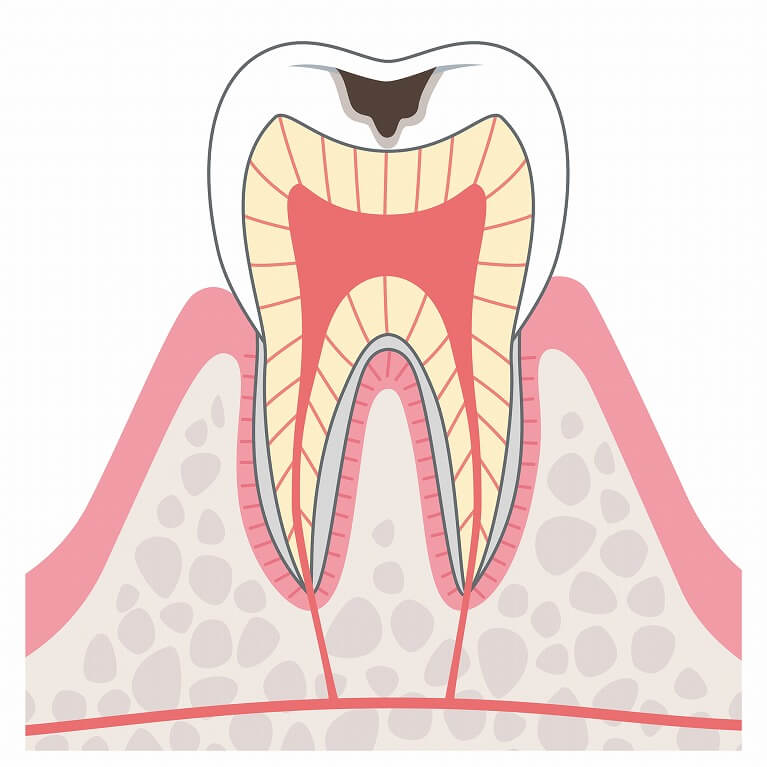 C2:象牙質の虫歯